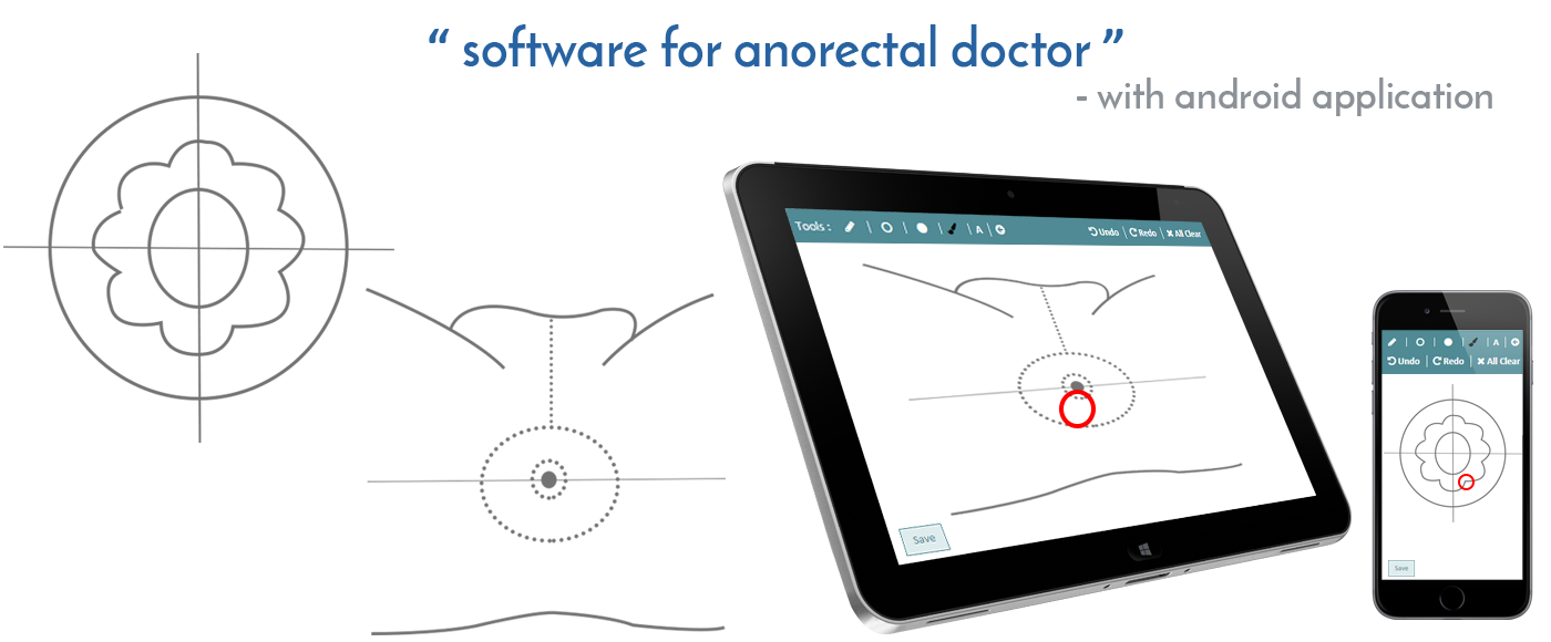 E-Procto | A Software for anorectal doctors